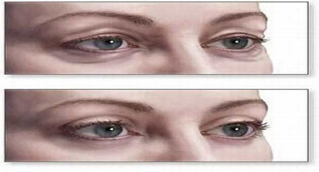 Cirurgia Plástica na Área dos Olhos, Blefaroplastia