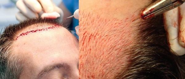 queda de cabelo implante capilar