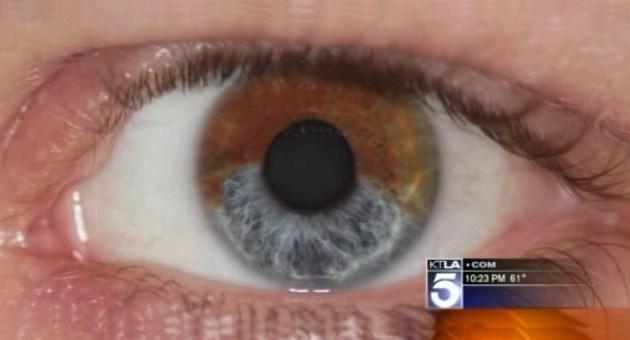 Médico californiano inventa laser que muda olhos castanhos para ...
