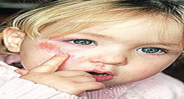 Celulite infecciosa: o que é, como tratar