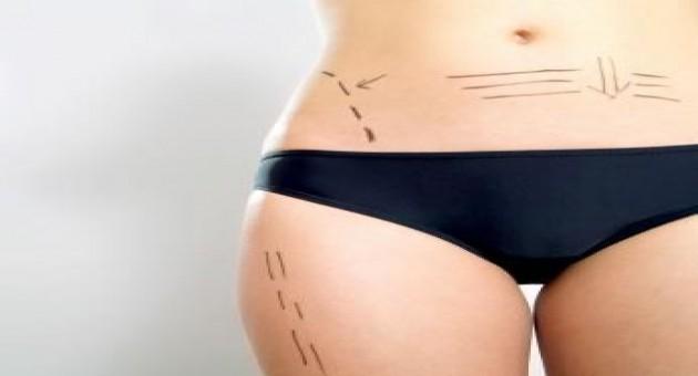 Contraindicações para cirurgia plástica
