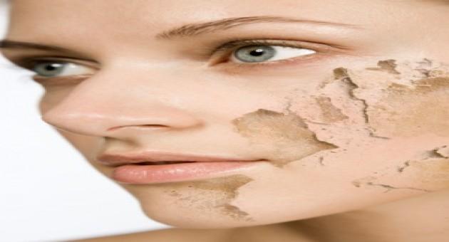 Como limpar pele seca