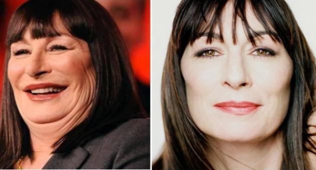 Famosas que colocaram botox: antes e depois