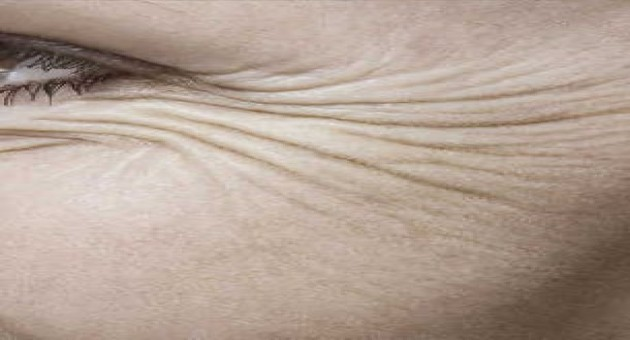 Tipos de rugas e como tratá-las