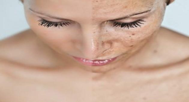 Maquiagem para esconder melasmas
